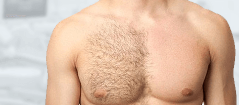 Body hair transplantation