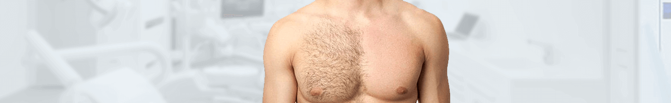 Body hair transplantation
